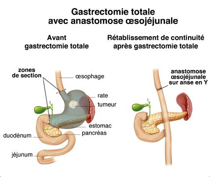 GASTRECTOMIE TOTALE PDF